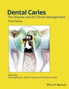New Dental Caries Textbook